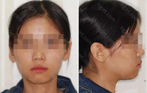 上海贝德口腔做隐形矫正牙齿1~12月变化图案例:做凸嘴矫正前的照片: