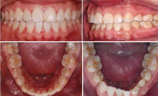 做隐形牙齿矫正8个月时候的照片:牙齿已经有了明显的变化