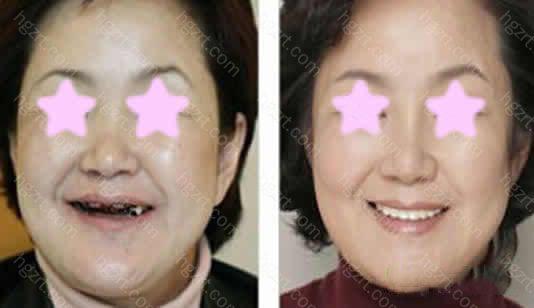 上海贝德口腔医院种植牙怎么样?顾亮医生All-on-4种植牙真人案例效果图前后对比案例