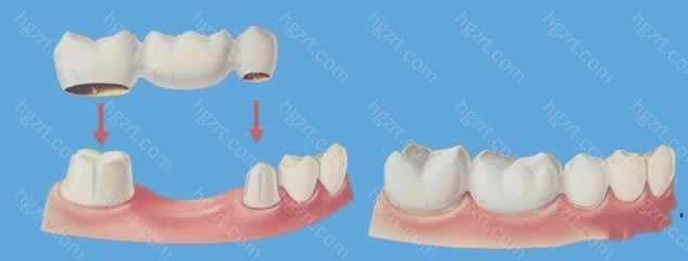 4、维护牙龈健康