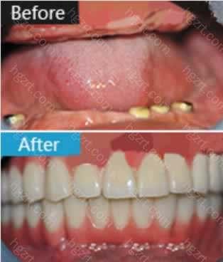 大庆康美口腔医院全口牙齿种植案例