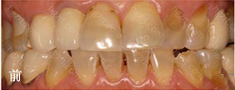 南京雅康口腔德国3D超薄全瓷牙贴面