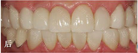 德国3D超薄全瓷牙贴面技术