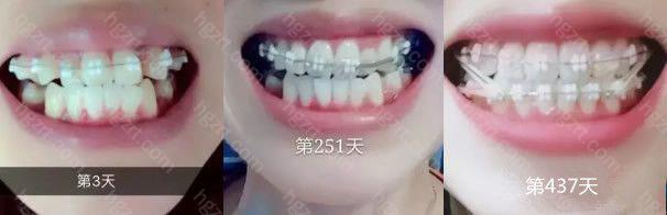 哈尔滨芽美口腔做牙齿矫正前后对比图