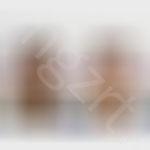 韩式vline手术+切开式双眼皮效果图