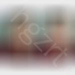 PS水光针+脸颊脂肪填充效果图前后对比
