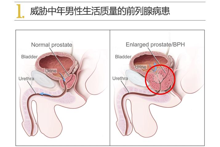 韩国试探他男科前列腺肥大治疗妙招