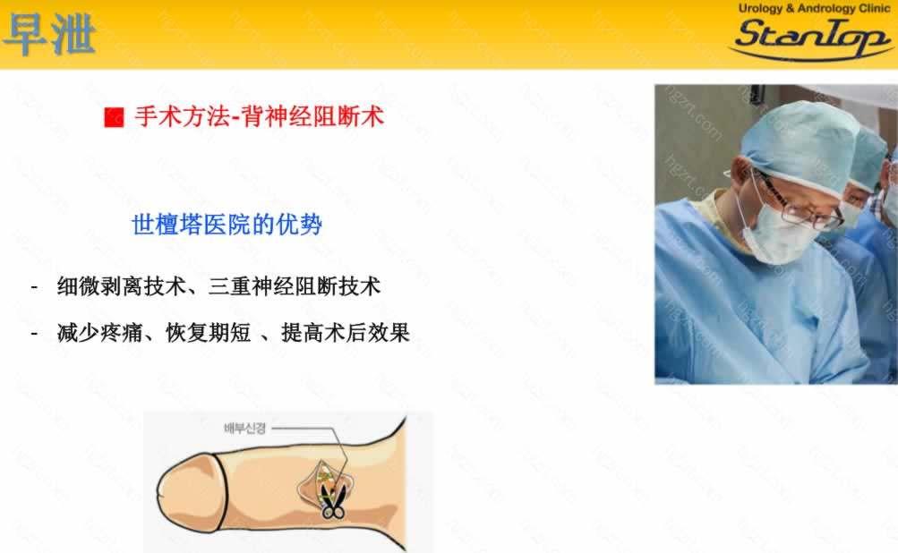 手术方法-背神经阻断术