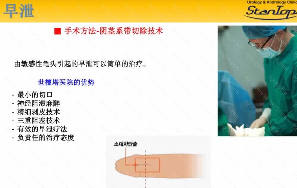 手术方法-阴茎系带切除技术