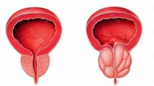 前列腺增生症(BPH)是一种老年男性的常见病