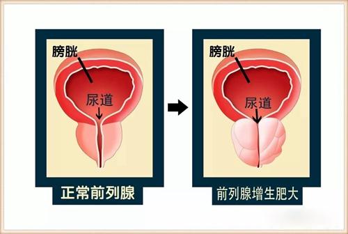 韩国怎么治疗前列腺增生肥大?
