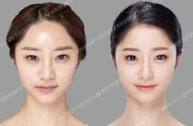 韩国原辰整形外科郑昌殷手术效果好吗?