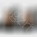 上海九院风格鼻综合+全切双眼皮前后对比效果图模拟