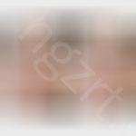 上海九院风格双眼皮+鼻综合效果前后对比PS