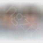 上海九院风格隆鼻效果+瘦脸针效果前后对比ps