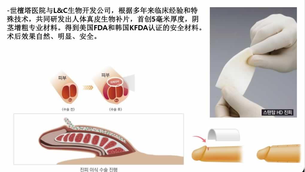 韩国已经玻尿酸增粗手术可靠吗?