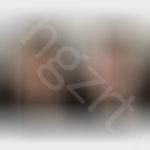 面部线雕提升效果前后对比模拟图