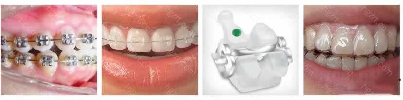 哈尔滨优诺牙博士口腔门诊在医疗质量、服务质量、消毒工艺上均按标准严格执行
