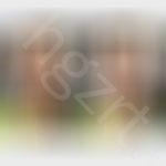 北京妹子面部脂肪填充效果图前后对比模拟