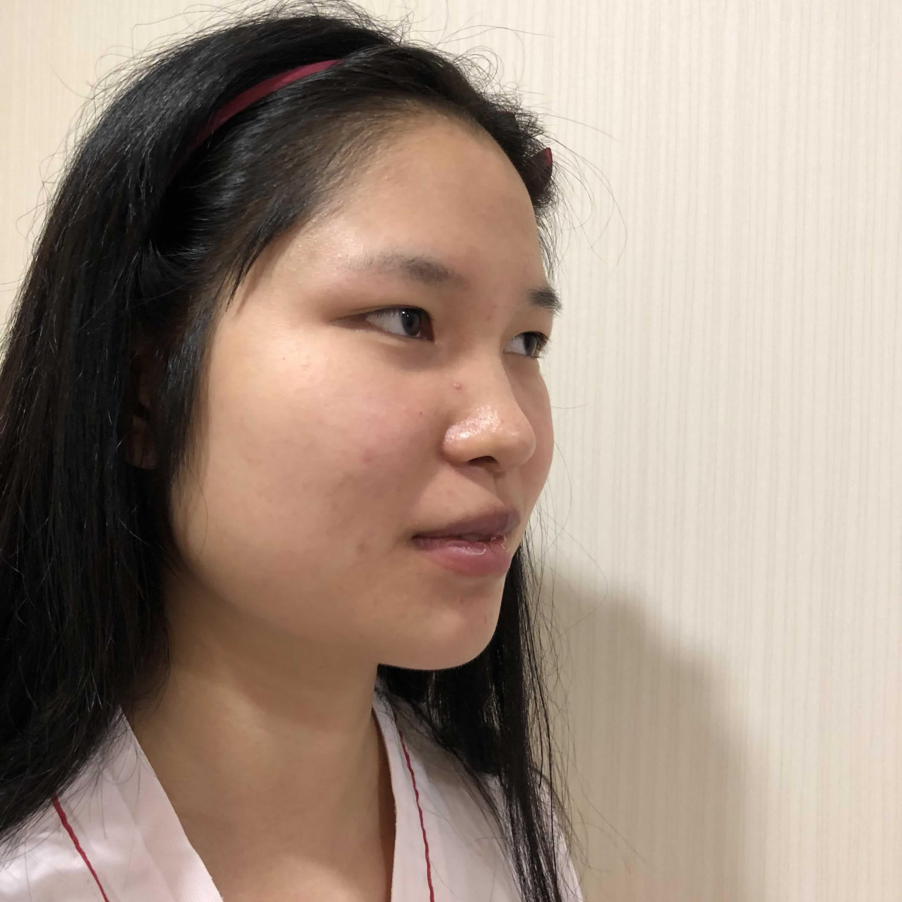 我的软肋骨隆鼻效果照片怎么样,遗憾没能预约到上海九院。
