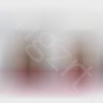给广州的妹子PS面部脂肪填充效果前后对比