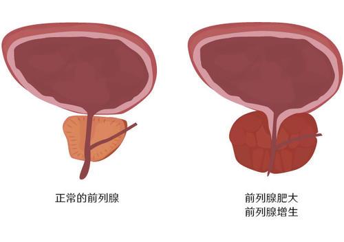 治疗前列腺增生肥大韩国试探他医院前列腺环扎手术怎么样呢?