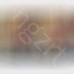 给广州的靓妹模拟的假体隆鼻效果前后对面。