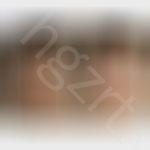 给北京的大美妞设计的脸颊脂肪填充效果图前后对比