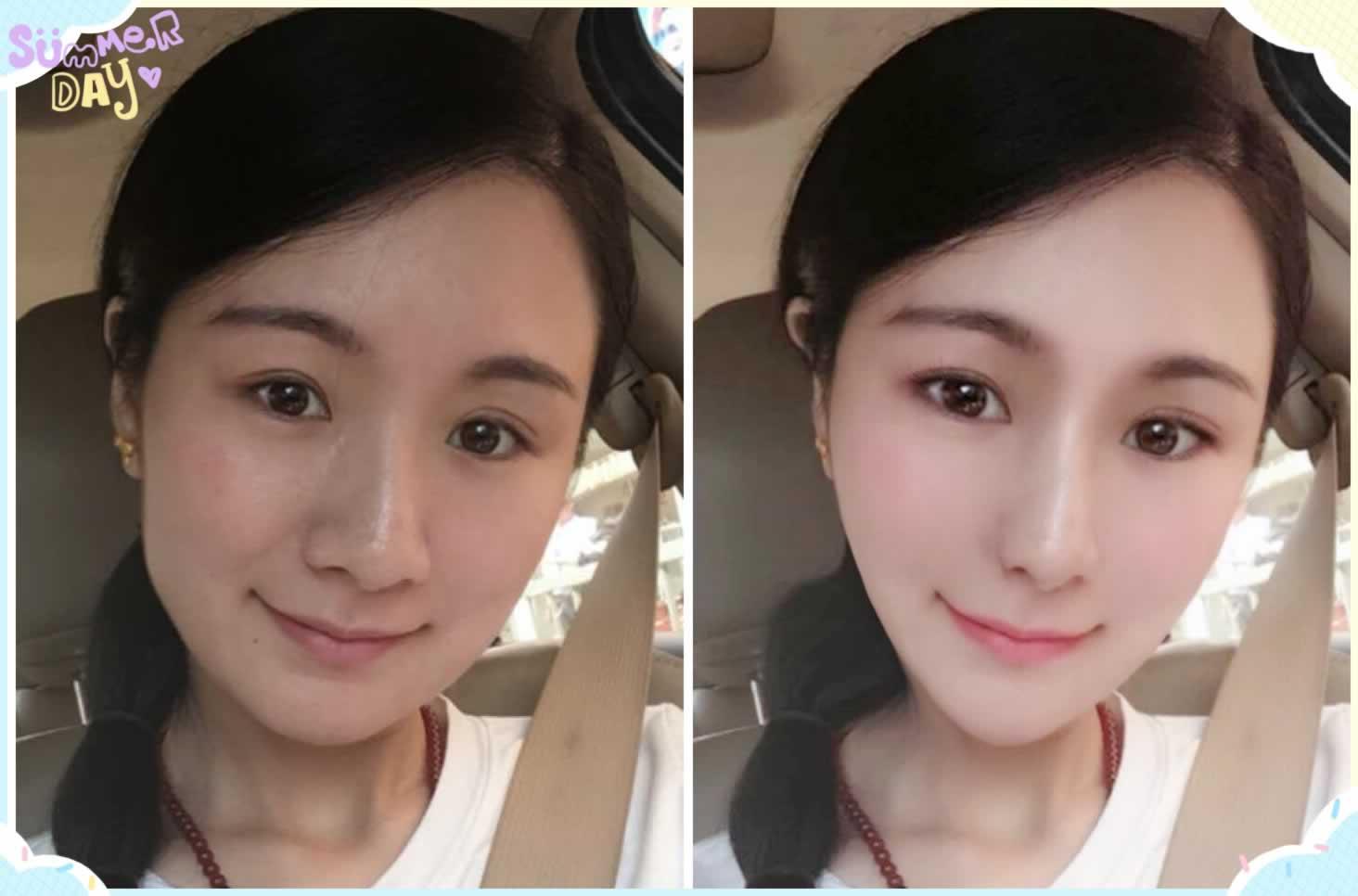 模拟瘦脸针效果图前后对比。