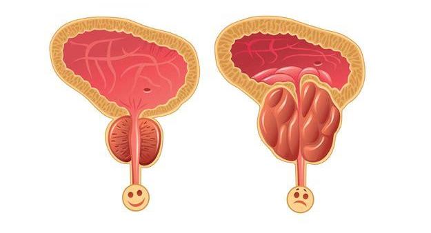 前列腺怎么治?韩国前列腺环扎手术治疗前列腺肥大效果好吗?