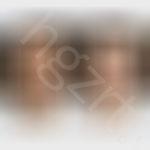 给美丽的广州美眉模拟韩式改脸型手术效果图前后对比