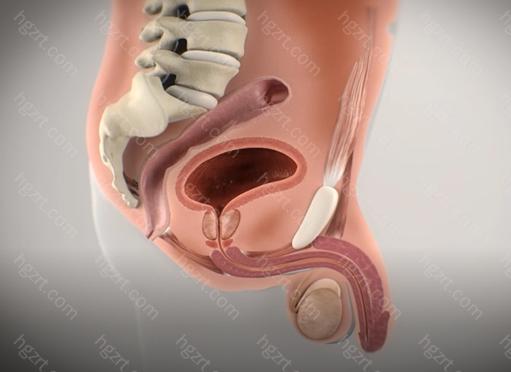 前列腺炎的饮食禁忌主要有: