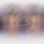 给杭州的妹子模拟全切双眼皮效果图