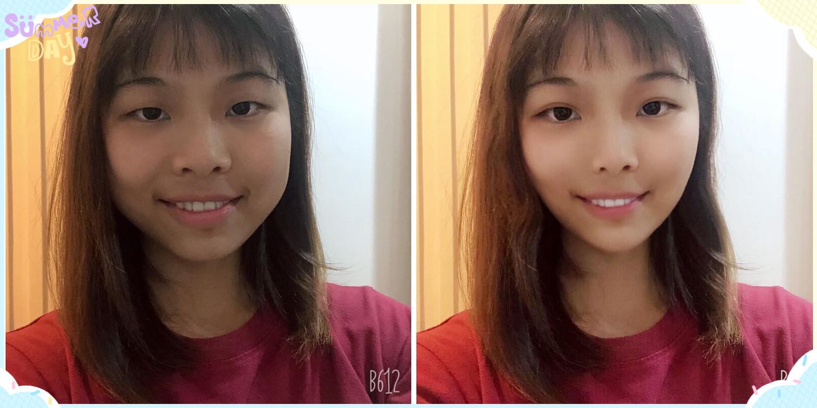 应广东深圳的靓妹要求给模拟了面部吸脂+双眼皮效果图前后对比