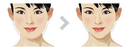 北京美莱面部吸脂瘦脸效果好吗?还有哪家比较好