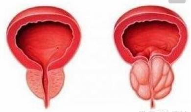 前列腺增生症会发生癌变吗?