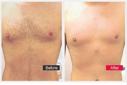 南宁韩成医疗美容医疗美容门诊部脱胸毛效果好不好,还有哪家比较好?