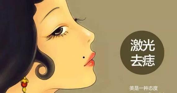 杭州群英整形外科门诊部激光去痣效果好不好,还有哪家比较好?