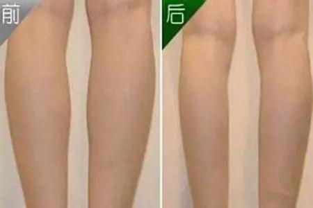 北京爱颜医疗美容吸脂瘦小腿效果好吗?还有哪家医院比较好?