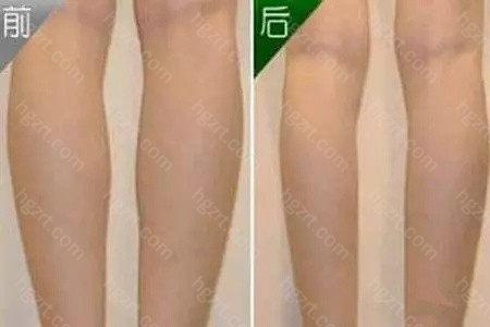 小腿吸脂减肥是对小腿实行局部脂肪抽吸