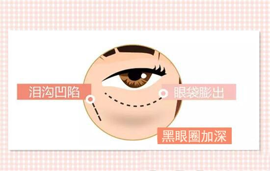 北京悦丽汇玻尿酸去黑眼圈怎么样?还有哪家医院好?