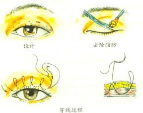 成都玉之光埋线双眼皮效果好不好,还有哪家比较好?