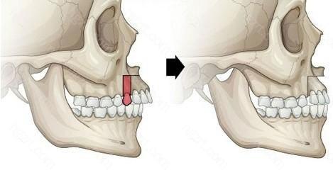 下颌前突畸形整形术是针对下颌前突畸形而进行的一种整形外科手术