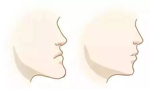 义乌连天美下颚前突地包天效果怎么样?还有哪家比较好?
