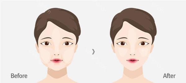 运城华美取颊脂垫瘦脸效果好不好,还有哪家比较好?