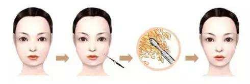 赣州星铂丽医疗脸部吸脂效果怎么样?还有哪家医院比较好?