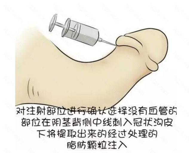 去细胞异体真皮填充术