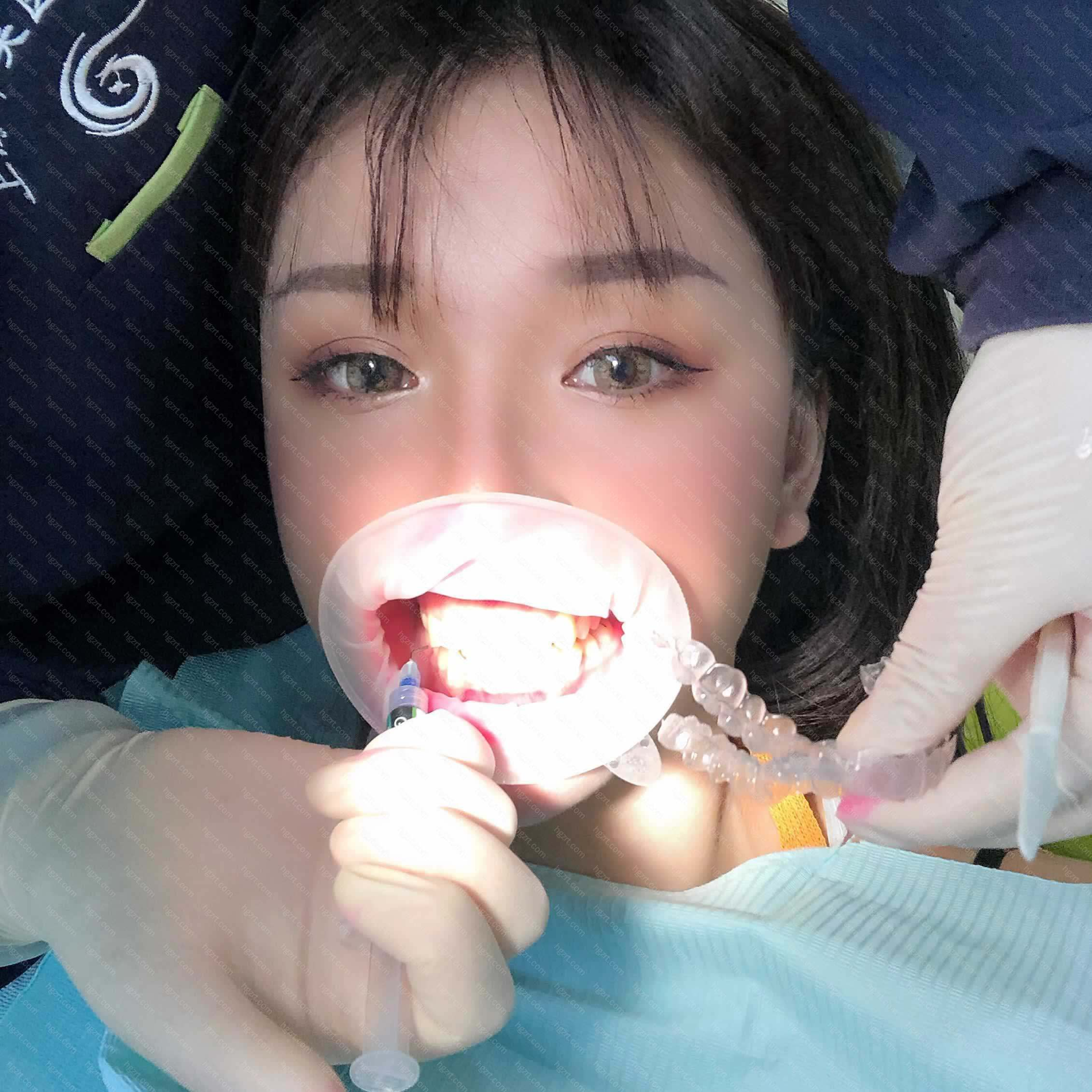 心里对牙齿矫正的想法有一次萌生了