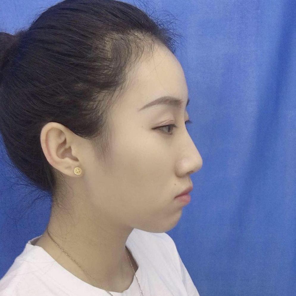 牙齿矫正对脸型的改变有多大?来看看我在北京壹加壹口腔做的矫正效果吧