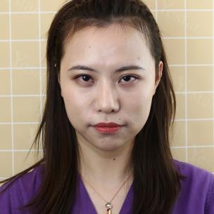 女生一定要有美美的发际线,来看我在上海艺星做的发际线种植好不好!